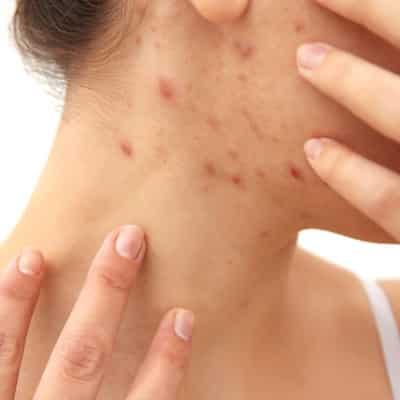Eine Frau zeigt ihren Hals, der übersät ist mit Akne