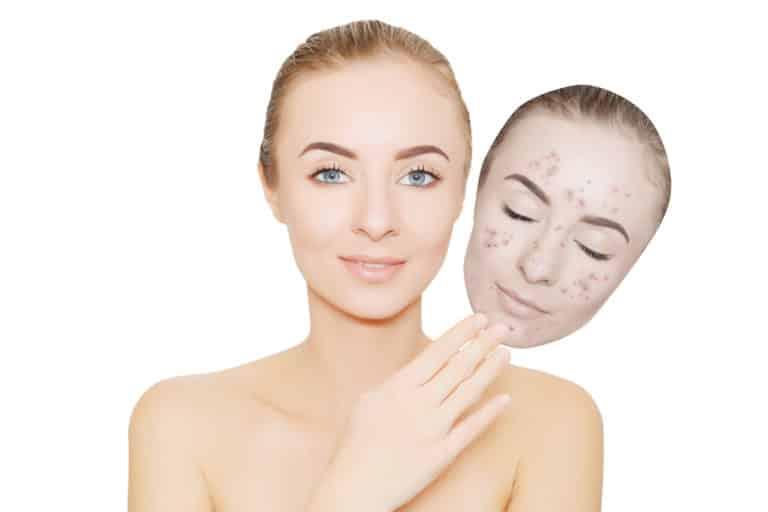 Eine Frau mit einer Maske mit Akne als Symbol für den Zusammenhang von Hautkrankheiten und Psyche